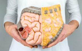 ce-este-rectocolita-ulcerohemoragica-boala-manifesta